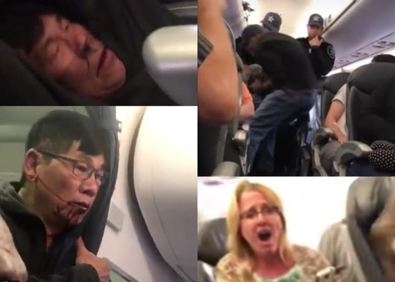 《UA航空施暴事件,受害者身份调查(越南华侨、内科医生...)》